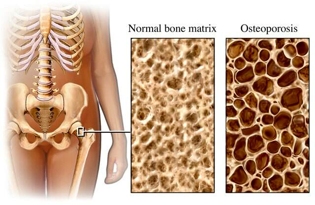 Natural Remedies For Bone Loss