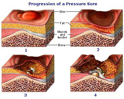progression-pressure-sore