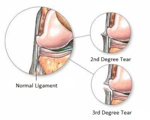 ligament_injury